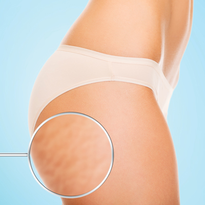Alameda Power Plate Treats Cellulite